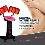 Medical Jet System - anti-rides - peeling - médecine esthétique - Compiègne - 60200