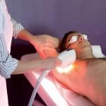 Photothermolyse - épilation par lumière pulsée - médecine esthétique - Compiègne -60200